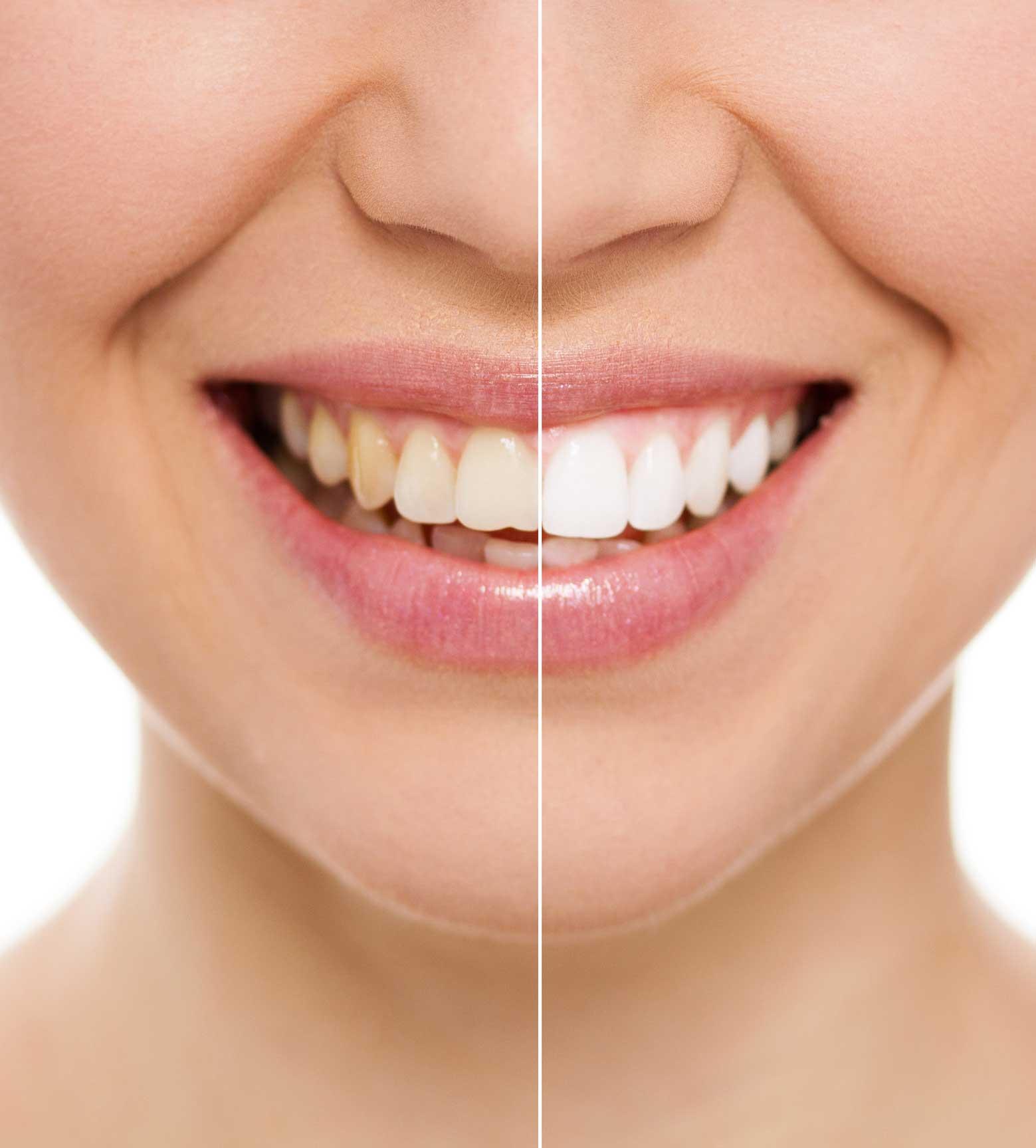 Estética dental en Los Realejos, Clínica dental en Los Realejos, Dentista en Los Realejos