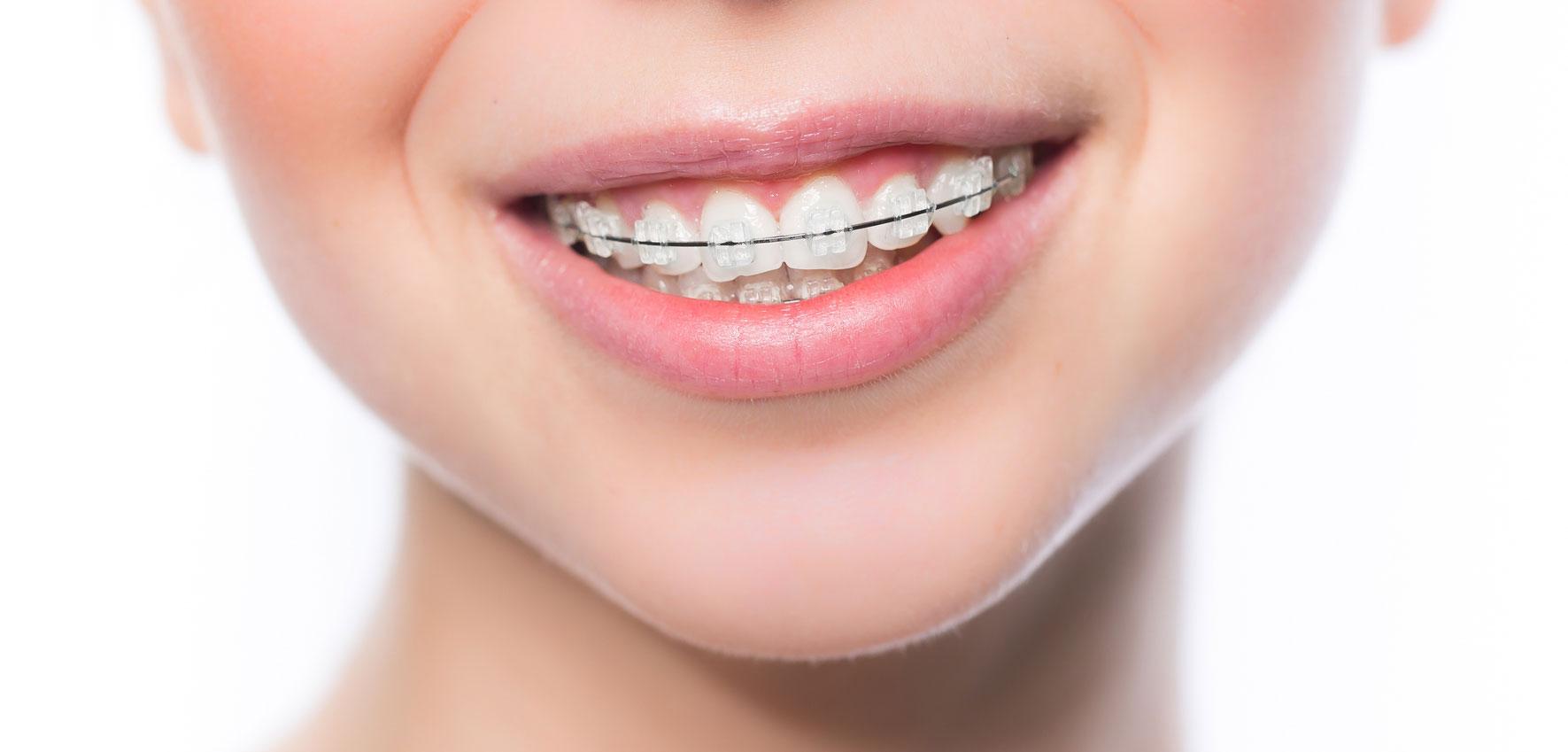 Ortodoncia en Los Realejos, Clínica dental en Los Realejos, Dentista en Los Realejos
