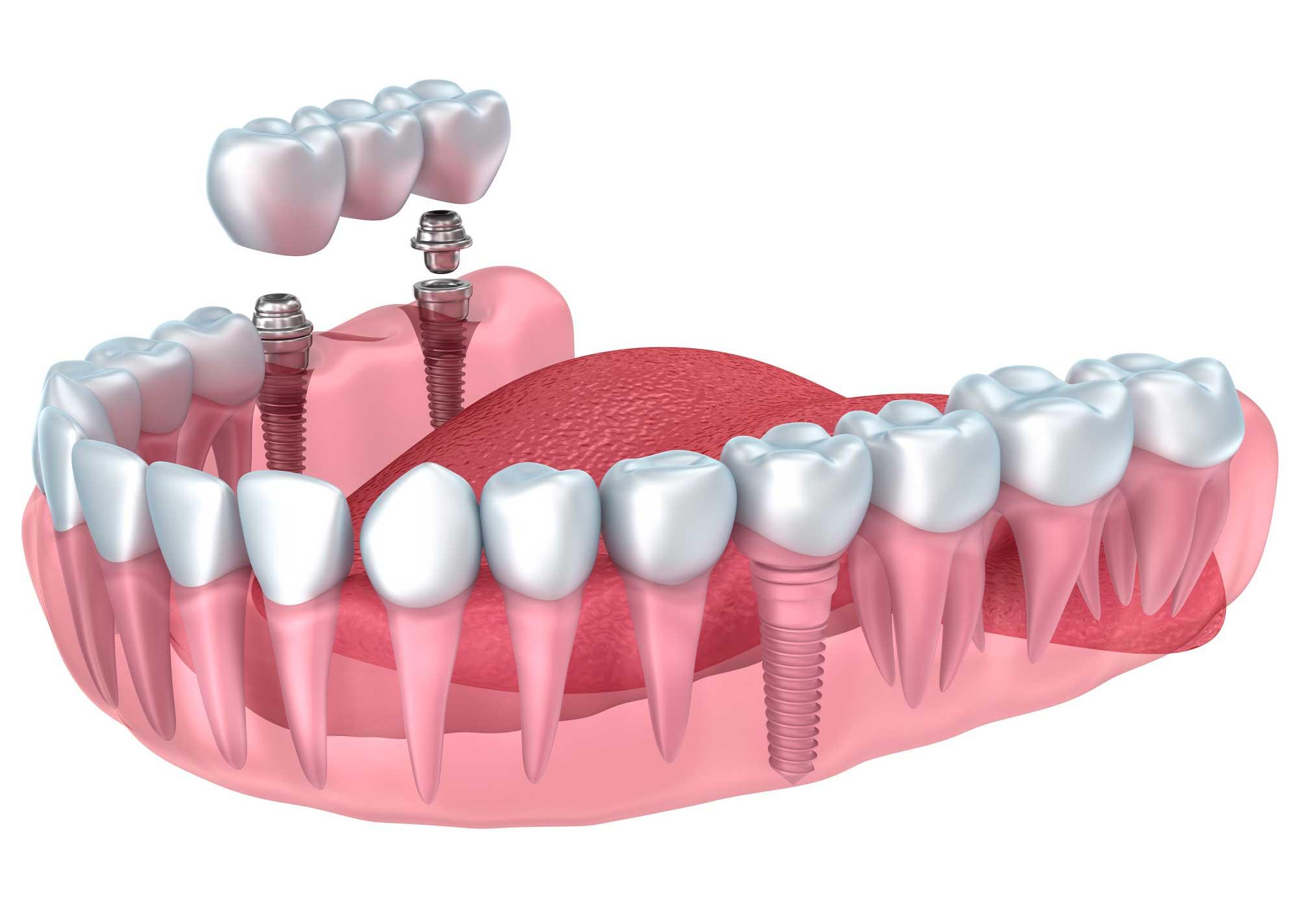 Implantes dentales en Los Realejos, Clínica dental en Los Realejos, Dentista en Los Realejos